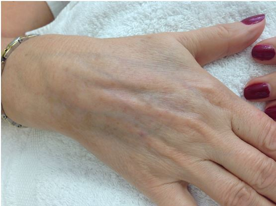 Client's hands after the IPL treatment