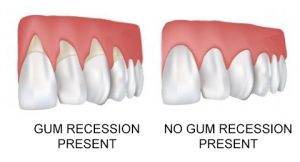 This is a picture showing gum recession and no gum recession.