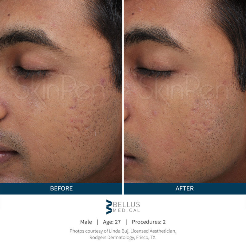 skinpen-male-before-after-1-800x810.jpg