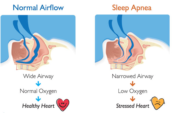 sleep-apnea-diagram.jpg