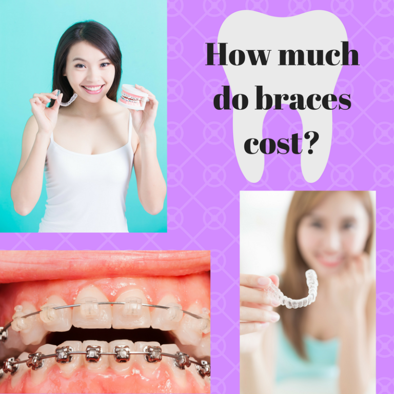 how-much-do-braces-cost-copy.png