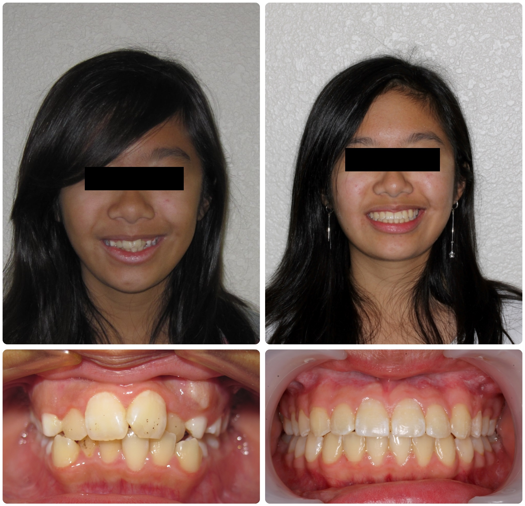 TR56-Before _ After.jpg
