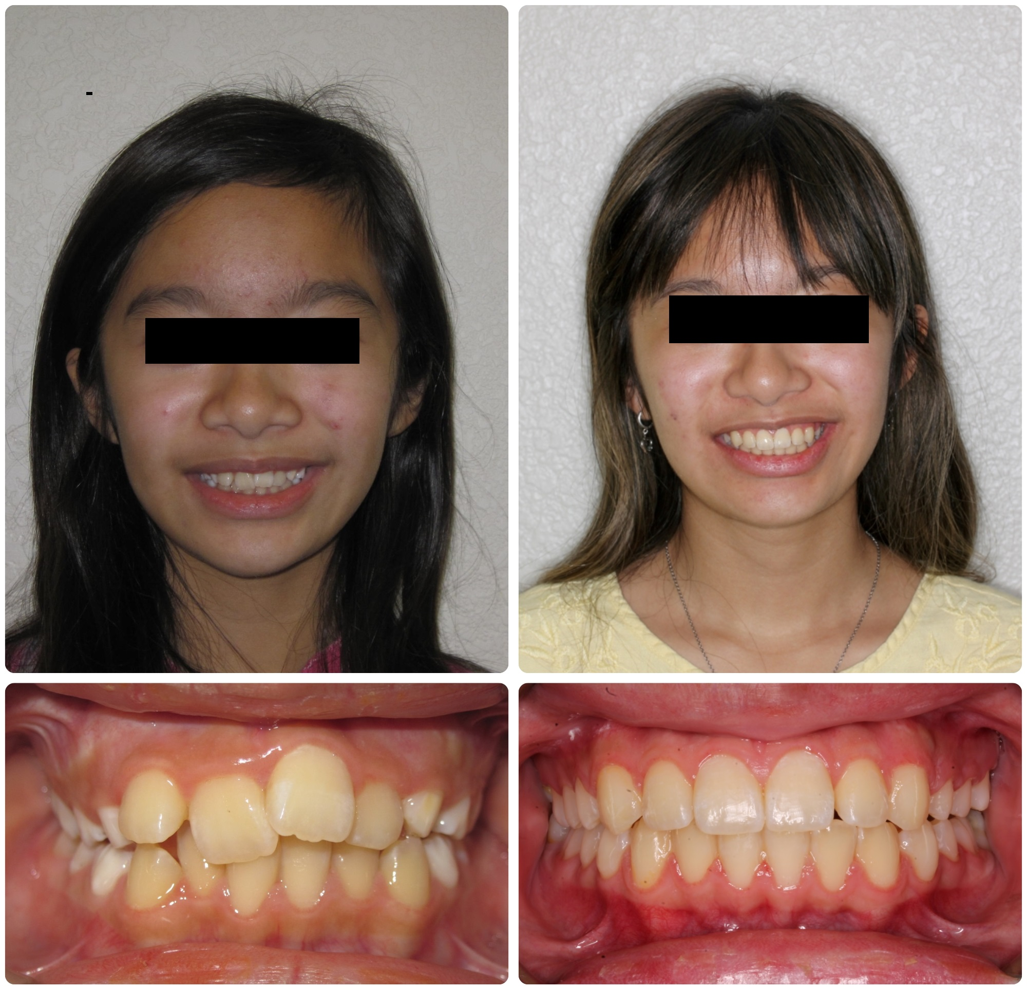 TR57-Before _ After.jpg