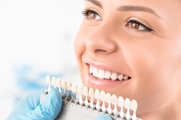 dental_veneers.jpg