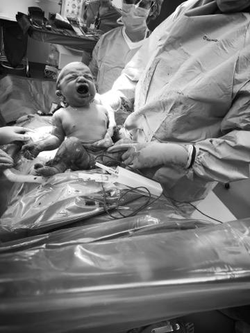 gentle cesarean birth.jpg
