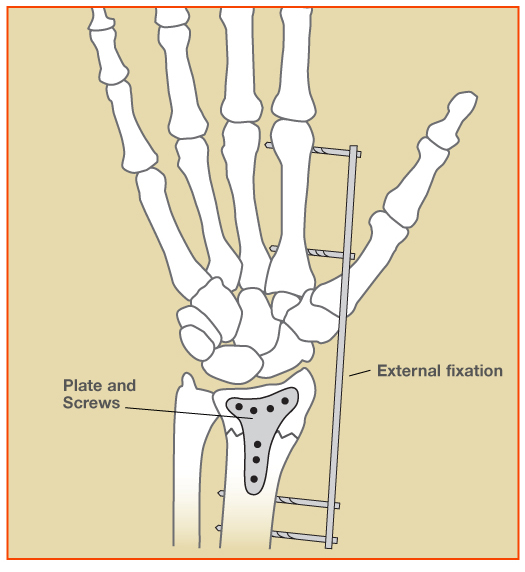 WristFracture_Fig2.jpg
