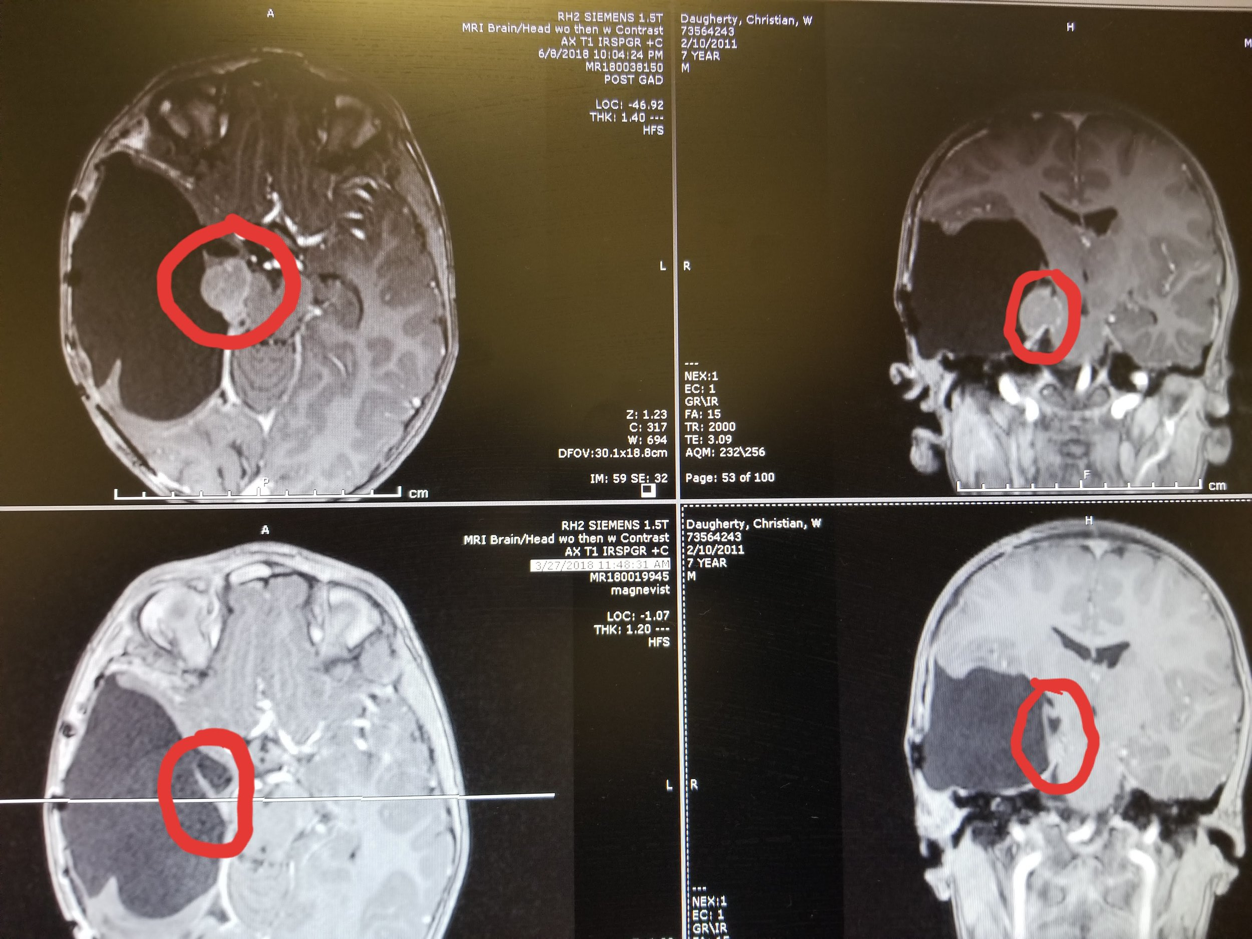 The left darker side of the scan shows where Christian now lacks part of his brain. It was removed to save his life from the tumor, circle, which is growing on his brain stem. A year and a half after this scan, four more tumors were found growing in his brain.