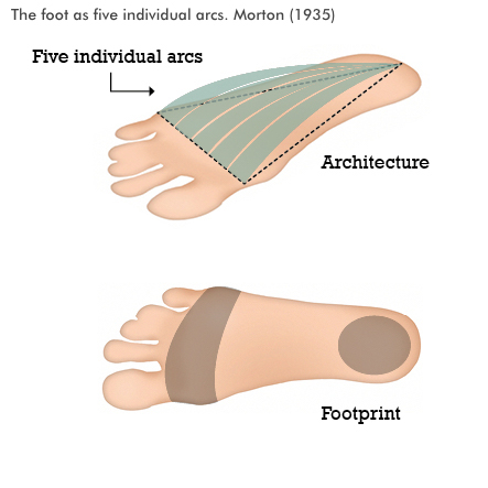 foot-as-five-individual-arcs.jpg