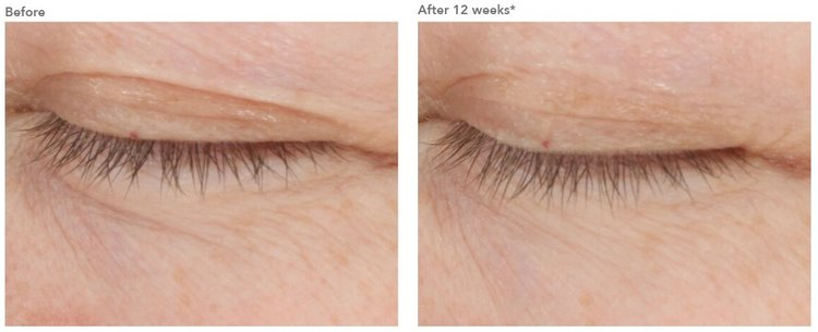Advanced all-in-one age-defying treatment for the eyes
