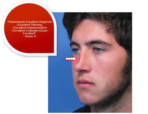 Crooked Nose Surgery , Dr. John Hikinshi, 2018
