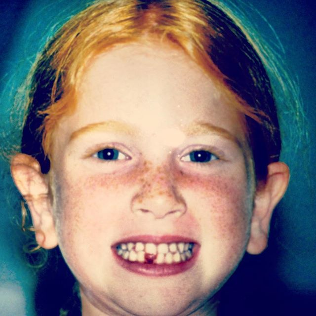 When I lost my first tooth! Or should I say, where it all began. #tbt
