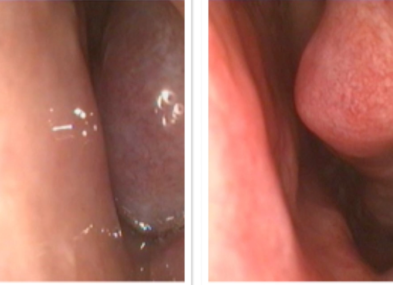 Figure 2  The image on the left shows a swollen inferior turbinate (a normal anatomical structure) causing complete nasal obstruction.  The image on the right shows the same nose 5 minutes after application of a nasal decongestant, showing a dramatic reduction in size of the turbinate, and an improvement in the nasal airway.  Many treatments for blocked nose aim for this effect.  Allergy sprays, (such as Nasonex, Avamys and Omnaris) will give a similar result in some allergic patients, and may be the only treatment that is required.  If turbinates remain swollen, and obstructing despite maximal non-surgical treatment, surgery to reduce the turbinates ( coblation of inferior turbinates , or  inferior turbinoplasty ) is likely to help.