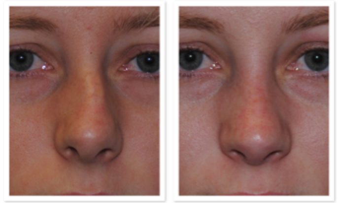 Figure 3: A bent nose with severe nasal obstruction.  Function and appearance were dramatically improved by  external rhinoseptoplasty  with Dr Smith