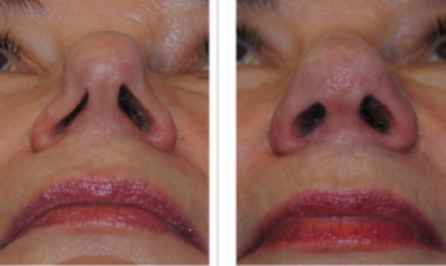 Figure 5: A nose with severe sidewall collapse, requiring external rhinoseptoplasty with Dr Smith, gaining a major improvement in breathing and appearance