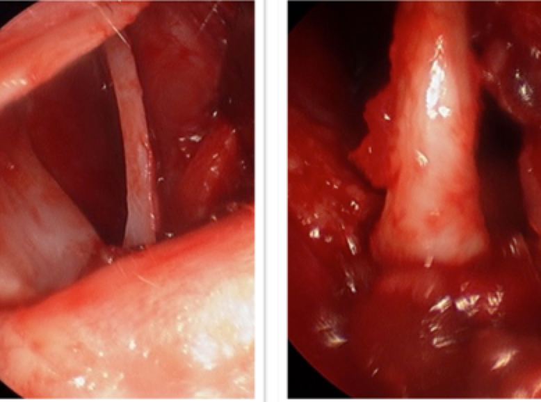 Figure 9: A severe bend of the nasal septal cartilage during septoplasty, and after reattachment to the maxilla