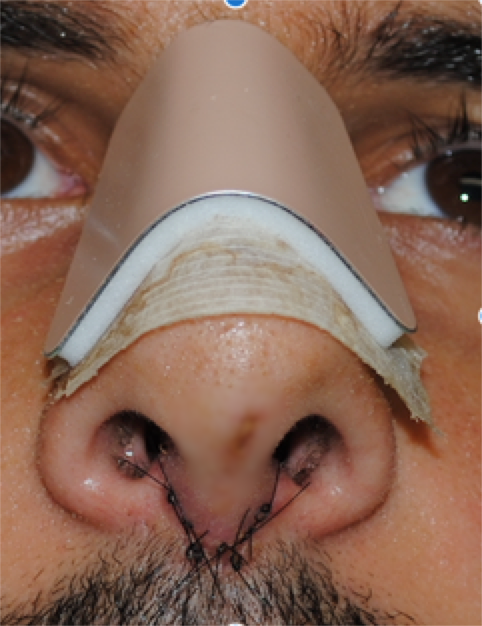 Photo, showing External splint, and stitches