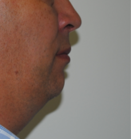 Figure 2: A patient presenting with sleep apnoea. There is retrognathia (small lower jaw), and a loss of the the normal division between the front of the neck, and the area under the lower jaw (the cervicomental angle).This abnormality often pushes the tongue towards the back wall of the throat in sleep, causing snoring and sleep apnoea. It can be seen even in a fit person of ideal weight. It may be treated with a mandibular advancement prosthesis, tongue base reduction surgery, or in some cases jaw surgery. In severe cases, CPAP remains the gold standard.