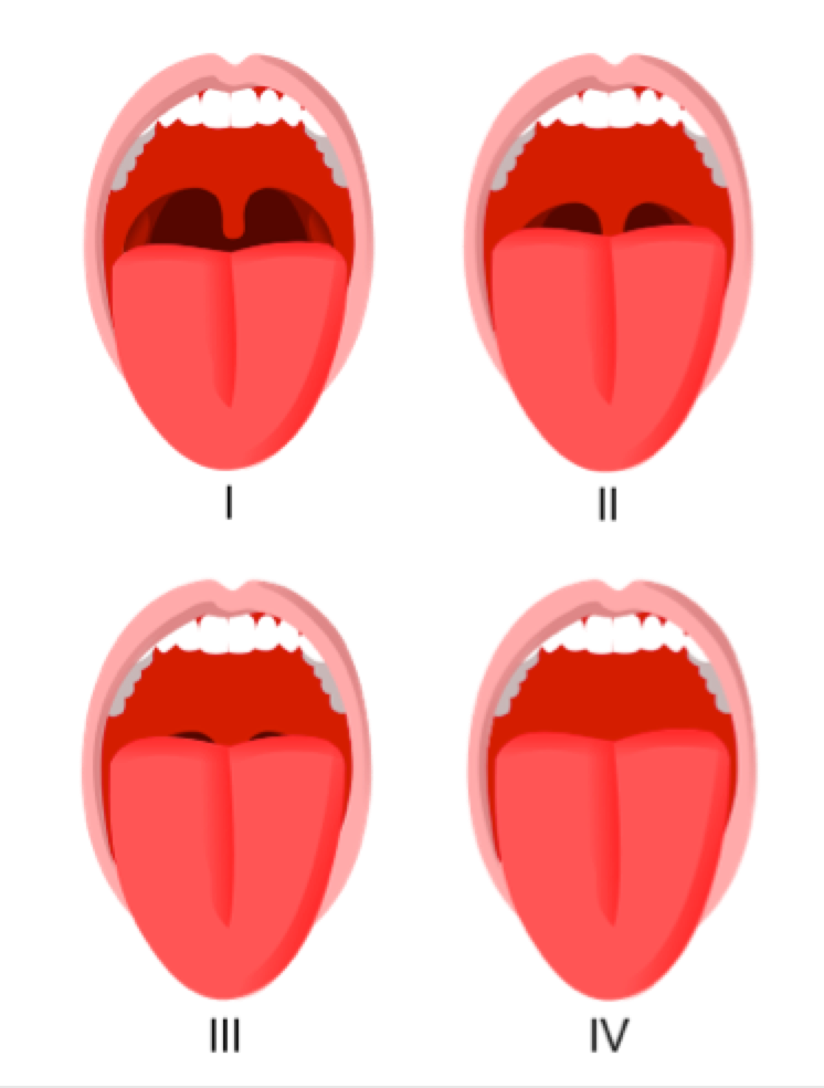 Figure 3: The Mallampati score. The higher score, the more space the tongue takes up in the mouth and throat, and the more likely the patient is to snore. This is a common factor in adult snoring.(Images by Jmarchn - Own work, CC BY-SA 3.0, https://commons.wikimedia.org/w/index.php?curid=12842847)