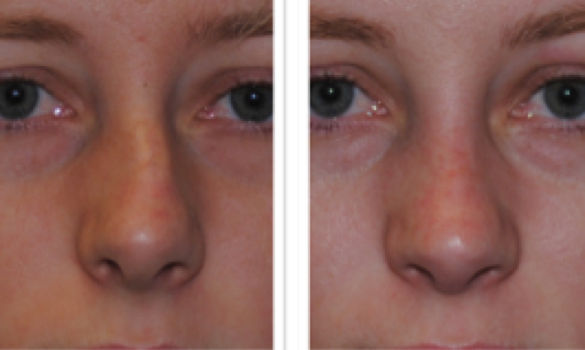 Figure 4: a signicant nasal deviation like this (before and after Rhinoplasty surgery by Dr Smith) is always associated with septal deviation, which in turn is likely to be associated with snoring and poor sleep quality