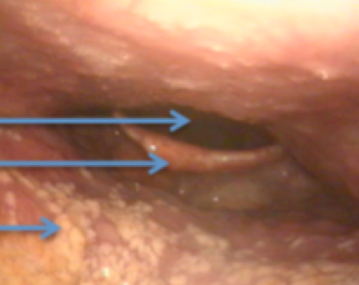 Figure 9: This patient had severe sleep apnoea realted to the relative size of his tongue in relation to his mouth and throat. The airway behind the tongue is very narrow evne when fully awake, and sitting upright. Clearly, this airway would be even worse when lying on his back (gravity effect), and when asleep (relaxation of muscles splinting the airway open). CPAP (a pressure mask) is likely to give a great result in this patient.