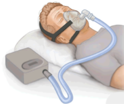 Figure 10: A diagram showing a CPAP mask in use. https://upload.wikimedia.org/wikipedia/commons/thumb/7/7f/CPAP.png/280px-CPAP.png