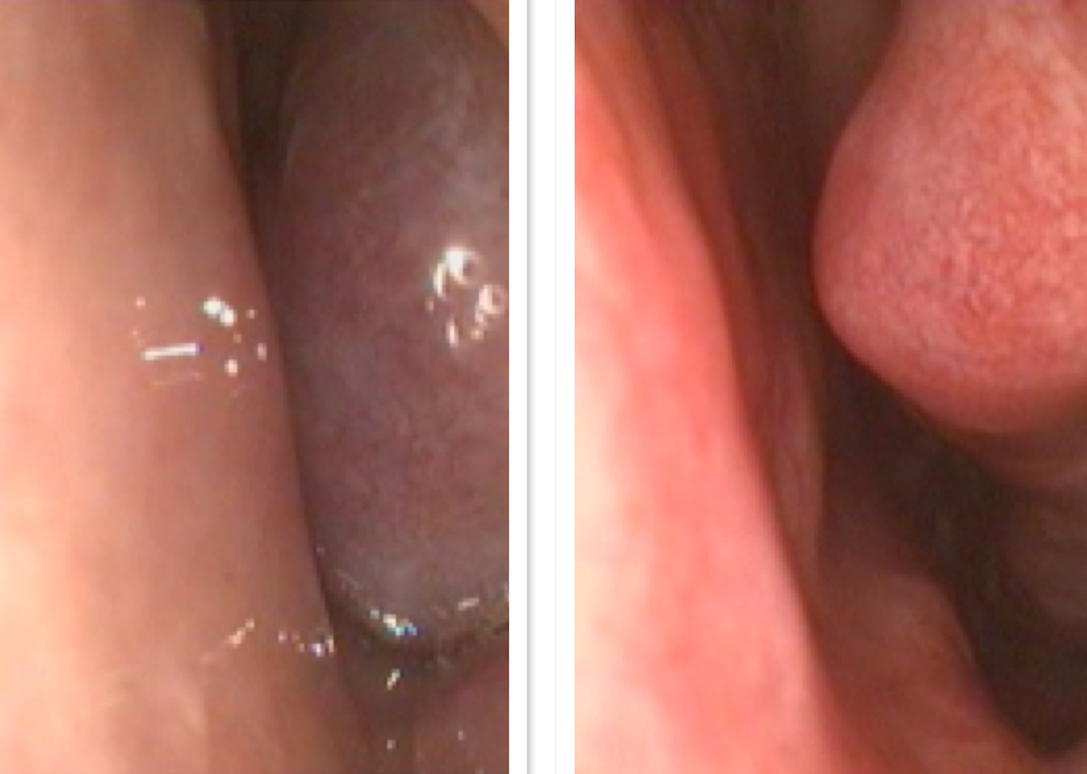 Figure above:  Left- Obstructing allergic turbinate with complete nasal airway obstruction. Right- The same patient after a good response to a nasal decongestant spray, with improved nasal airway. This effect can sometimes be achieved with a nasal spray such as Naosonex or Avamys. If the spray does not give this response, it can be achieved with surgery.