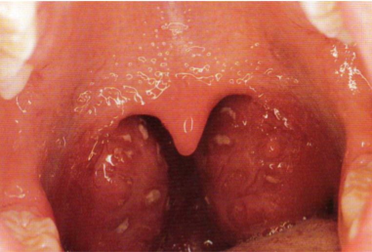 Figure (above): Large inflamed tonsils