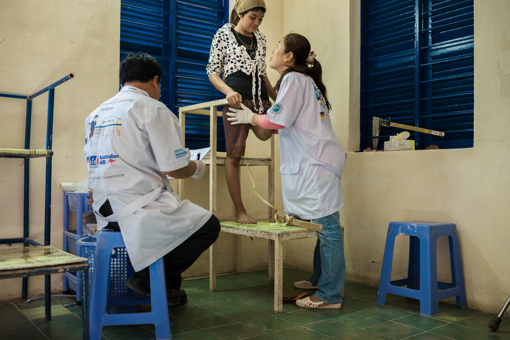 November 29, 2013 - Handicap International Rehabilitation Center (Kampong Cham). Dott. Chai Borany (27) measures a patient's amputation to fit a prostethic leg. She is one of the 70 Cambodians who graduated at the CSPO (The Cambodia School of Prosthetics and Orthotics), a school that provides Prosthetics - Orthotics training for students from low-income countries in Phnom Penh. © Thomas Cristofoletti / Ruom for UNDP