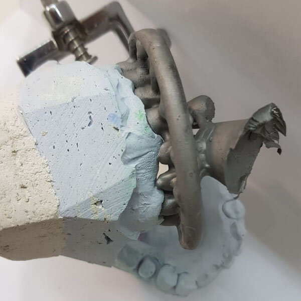Harzlabs dental cast 3D resin