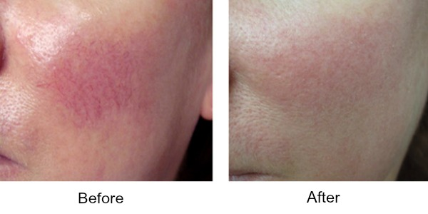 coolglide-vein-therapy-before-after.jpeg