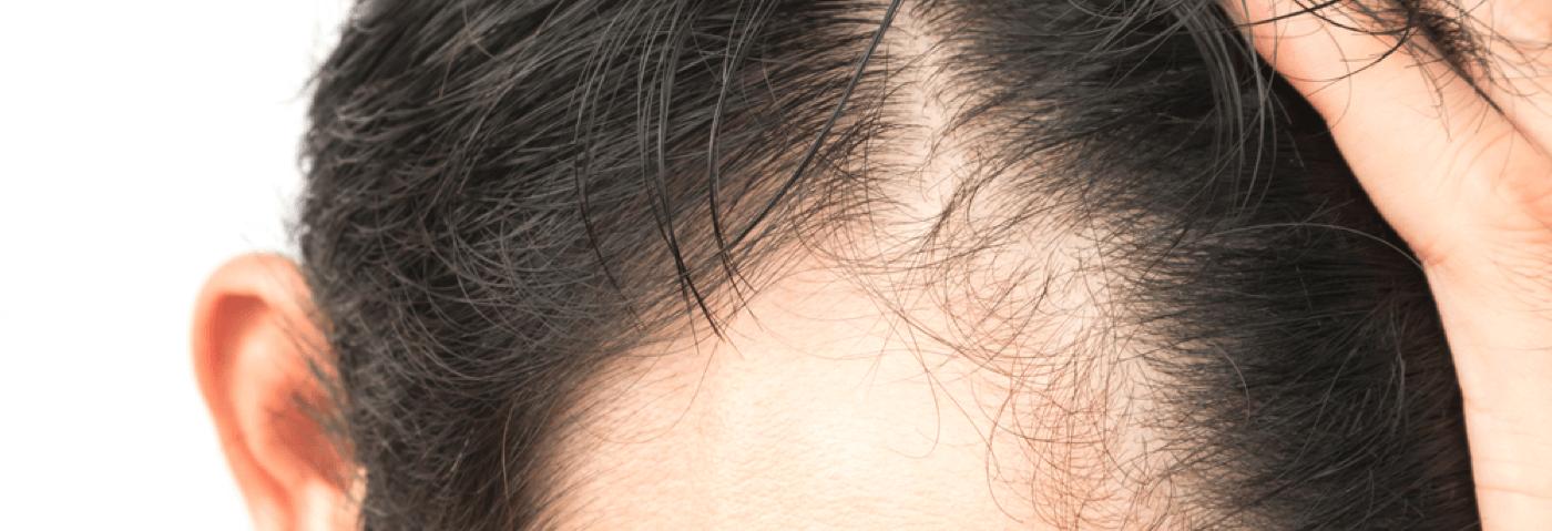 prescription hair restoration.png