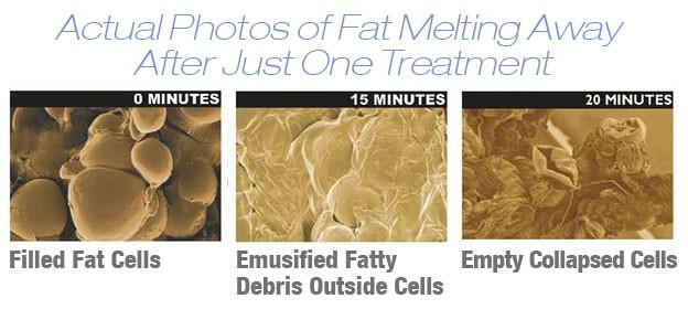 Fat Melting.jpg