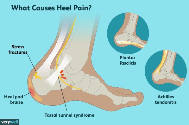 What Causes Heel Pain? — Foot \u0026 Ankle