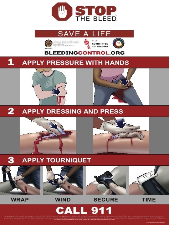 - Bleeding control techniques are not only simple to learn and apply, they are more likely to save a life then any other form of first aid. Let us train you and your friends, Contact us to host a course.