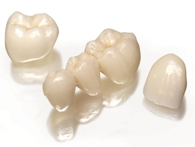 coronas-dentales-de-ceramica.jpg