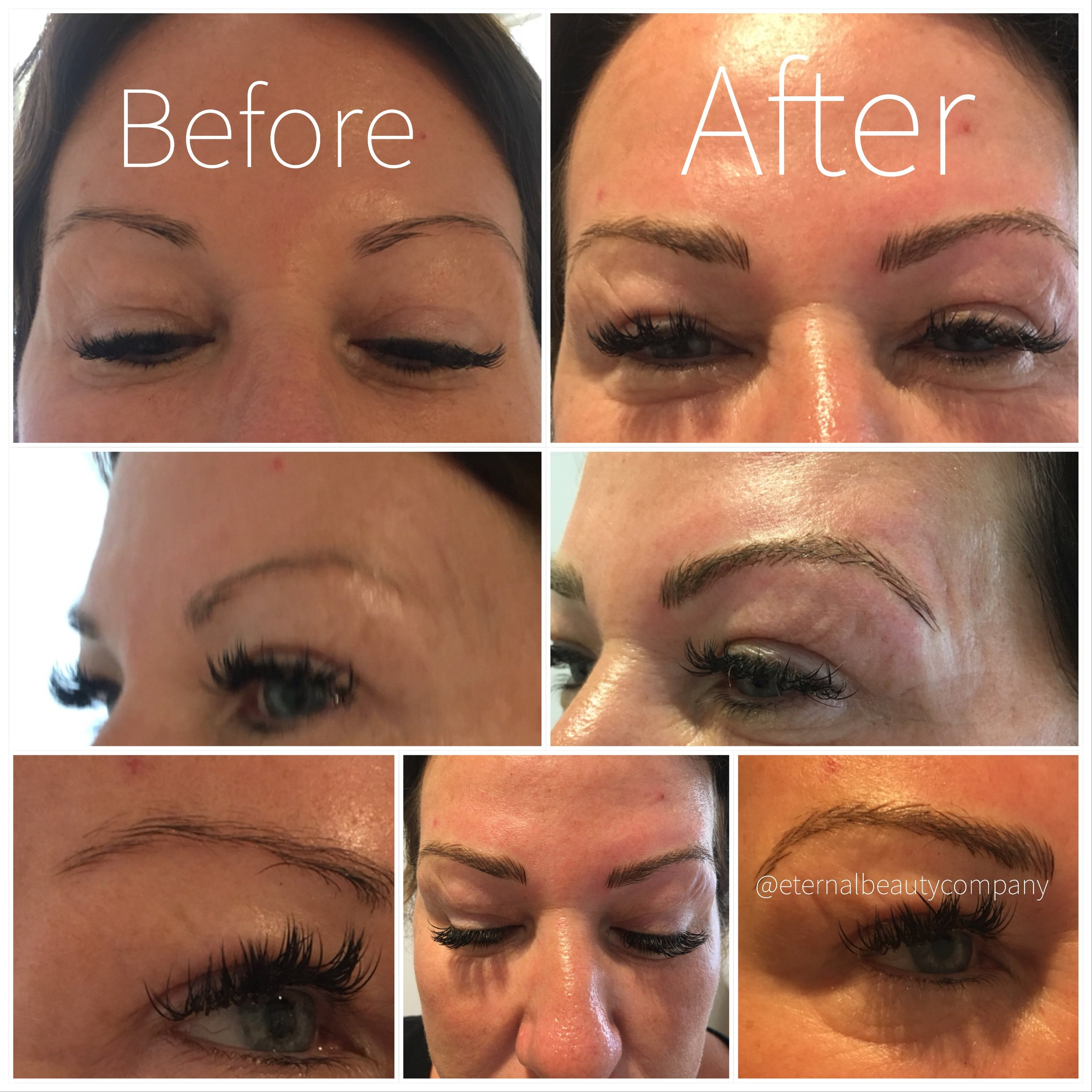 - Using a hand held tool each hairstroke is added to the brow. The tool is a similar to a pen but holds multiple needles to lightly etch the illusion of a hair stroke into the skin. Results last approx 12-18 months.Who is it best suited to?- Drier skin complexions as the needles don't penetrate too deeply- Those who want a realistic and feathery brow type- Those who want natural style brows- Those who want to want the results to not be as long as long lasting as device brows
