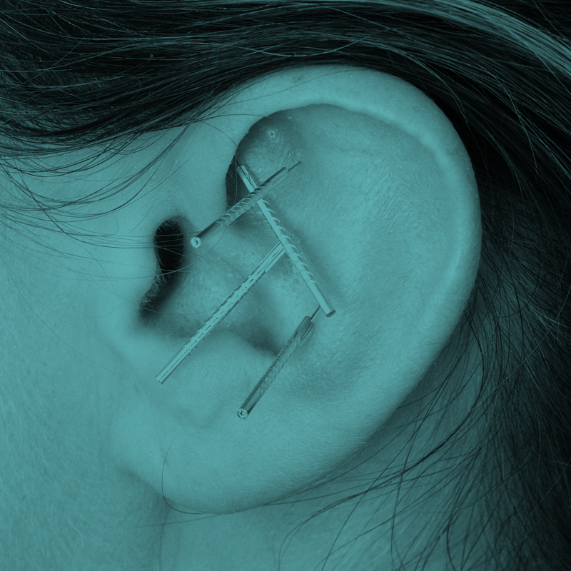 Get your Auricular Acupuncture certificate… -