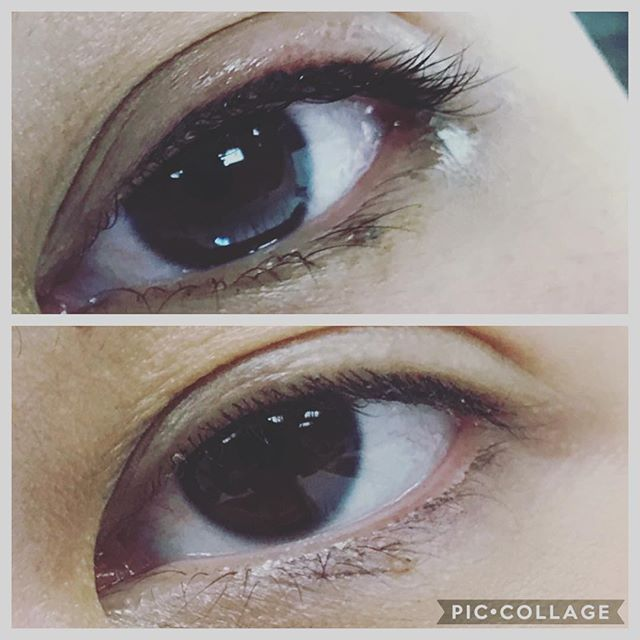 Micro pigmentation lash enhancement liner application. This procedure lasts 1-2 years with a touch up every year. Enhance your lash line with micro pigmentation liner. #wakeupnomakeup #semipermanentmakeup #tattoo #micropigmentation #artist #❤️❤️❤️#nanaimoartist #beauty #beautiful #liner #makeup