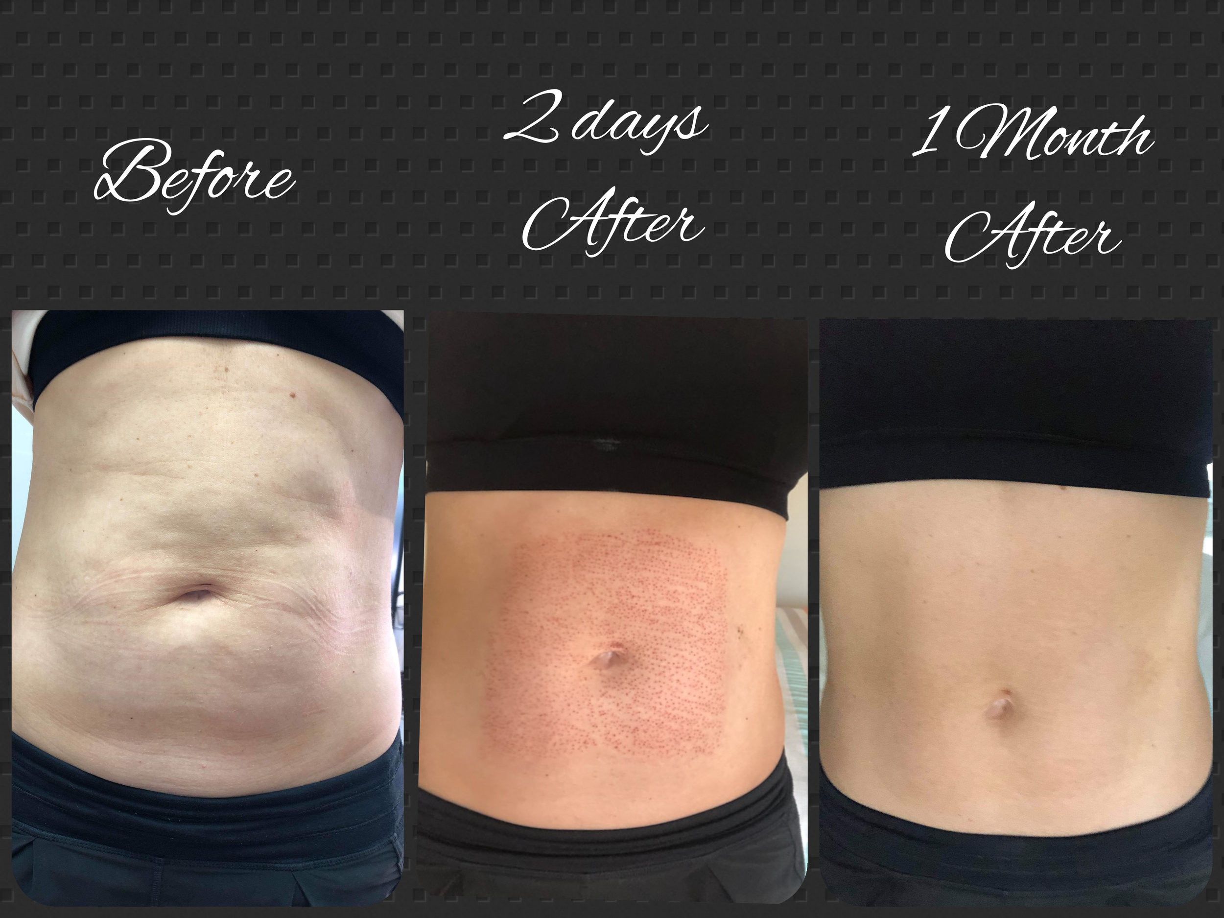 Note - This procedure does not help you loose weight, it tightens your excess skin. The above client had a c-section 3 years ago, and these were the results after the procedure to tighten her skin.