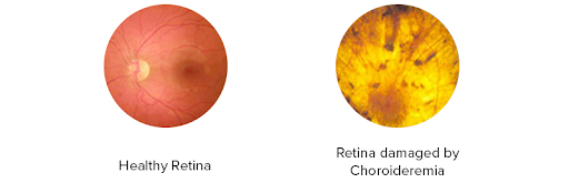 Choroideremia is characterised by a progressive deterioration of rod receptor cells in the eye's retina, Credit: Choroideremia Research Foundation