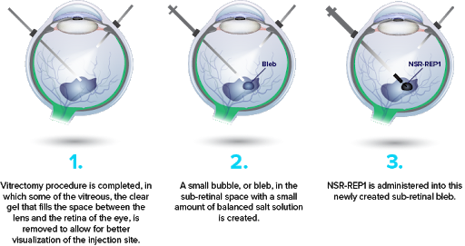 Nightstar's NSR-REP1 gene therapy requires a 3-step surgical procedure in CHM patients, Credit: Nightstar