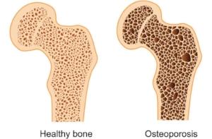 osteoporosis+v+healthy+bone.jpg