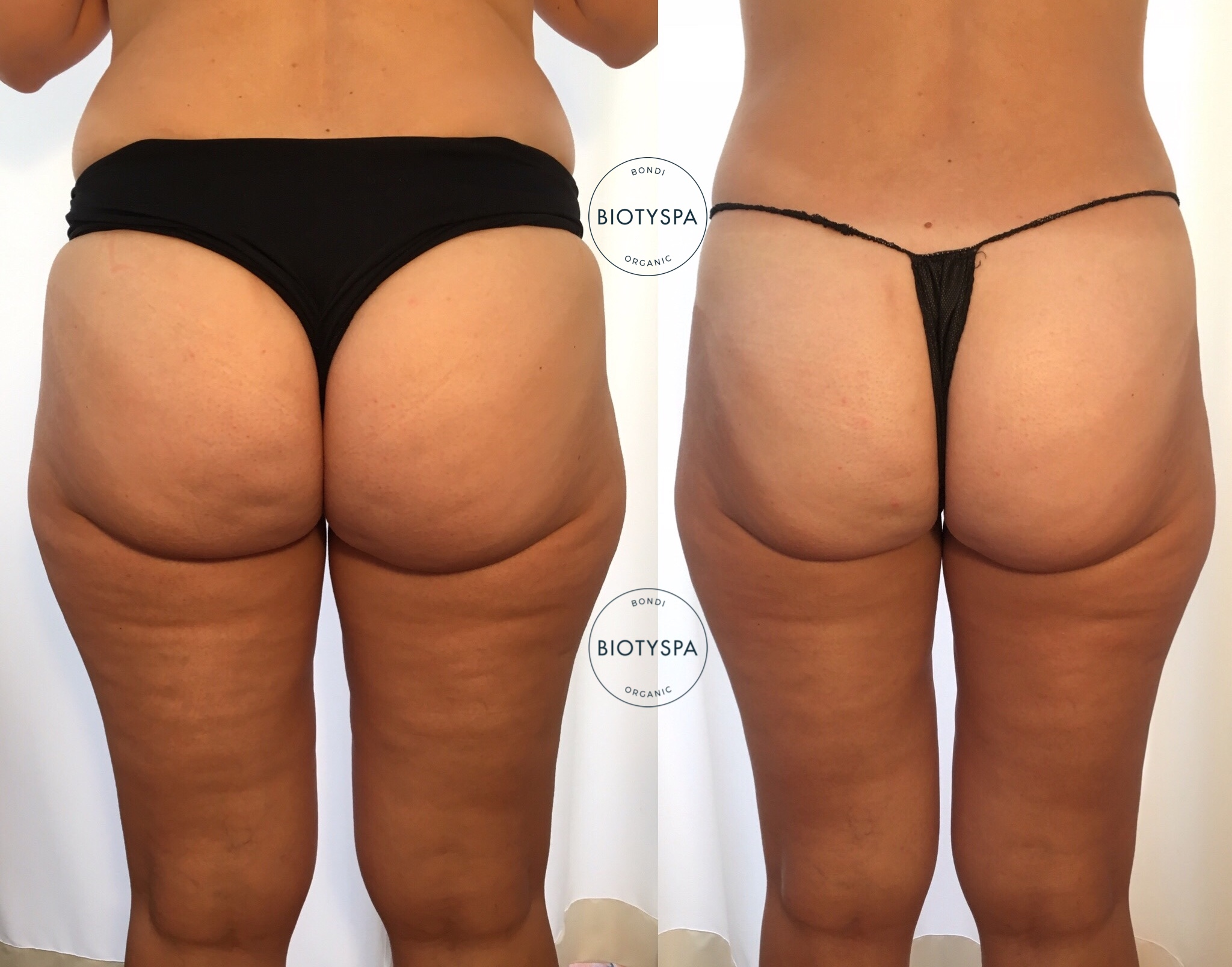 cellulite-treatment-biotyspa-activeslim.jpg