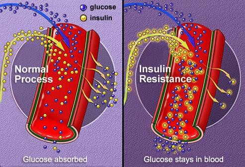 phototake_rm_illustration_of_insulin_absorption.jpg