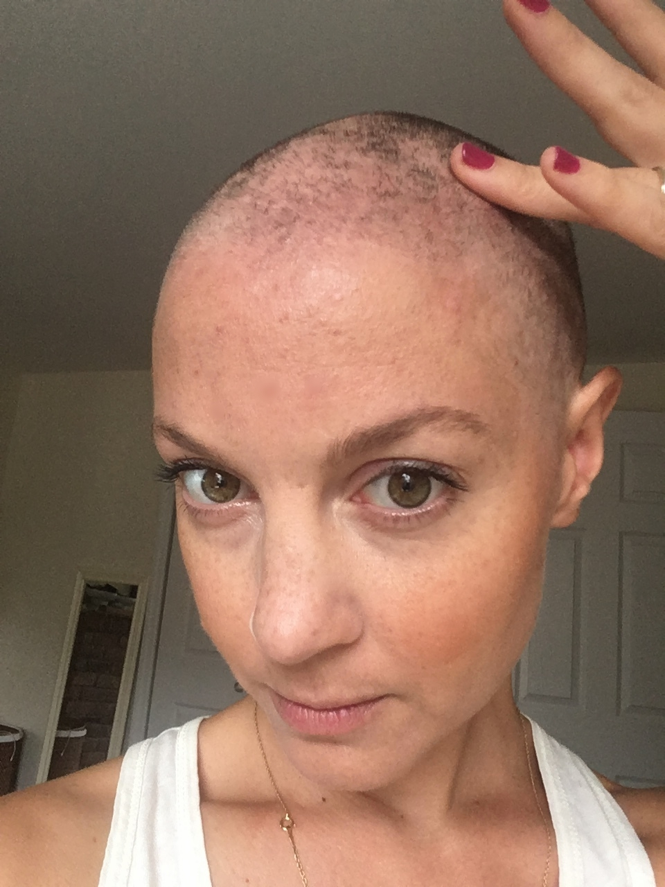 One week after radiation: hair loss continues.