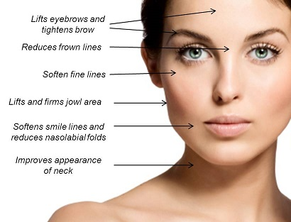 Ultherapy areas.jpg