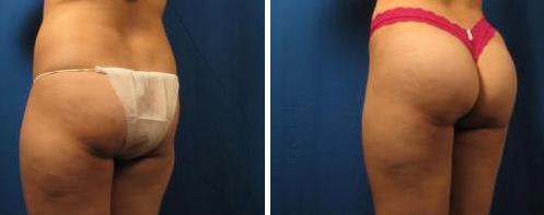 butt-lift-before-after.jpg