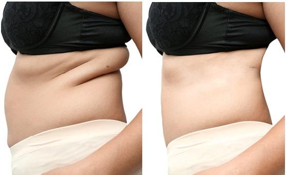 Fat Reduction.jpg