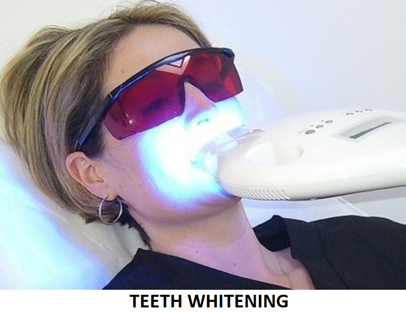 Teeth Whitening.png