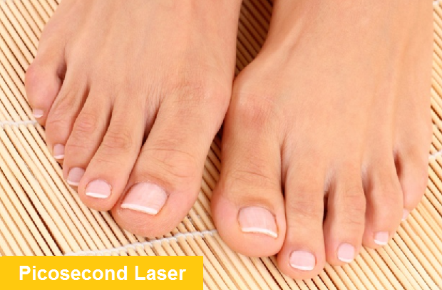 Embarrassing nail fungus can be effectively treated with laser without the dangerous side effects of oral medication .  NEW PICOSECOND LASER WILL REMOVE NAIL FUNGUS WITHOUT ANY PAIN FAST
